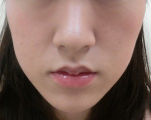 タケヒラ様② (2)