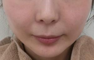 小林サブライム施術後 (13)