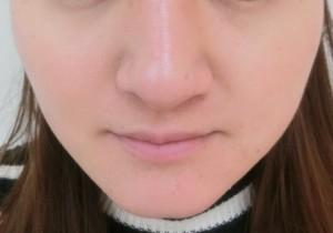 小顔エクセル施術後