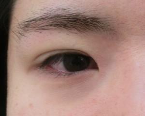 OPE直後 (31)