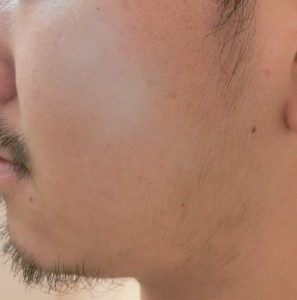 ① 前 (39)
