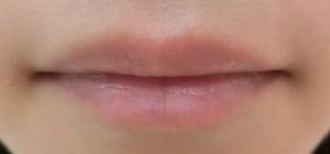 唇前 (21)