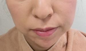 顎ヒアル後 (5)