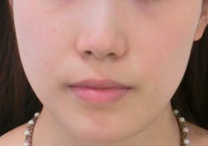 ① (15)