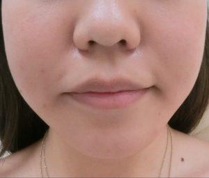 ① 小顔治療前
