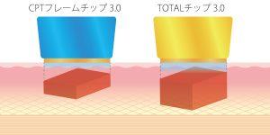 トータルチップは、通常のサーマクールCPTの約2倍の深さまで高周波熱を届けることが可能