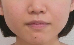 小顔のエクセル施術前