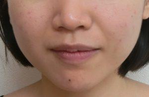 小顔のエクセル施術後
