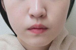 頬のミケランジェロのモニター様症例写真 After