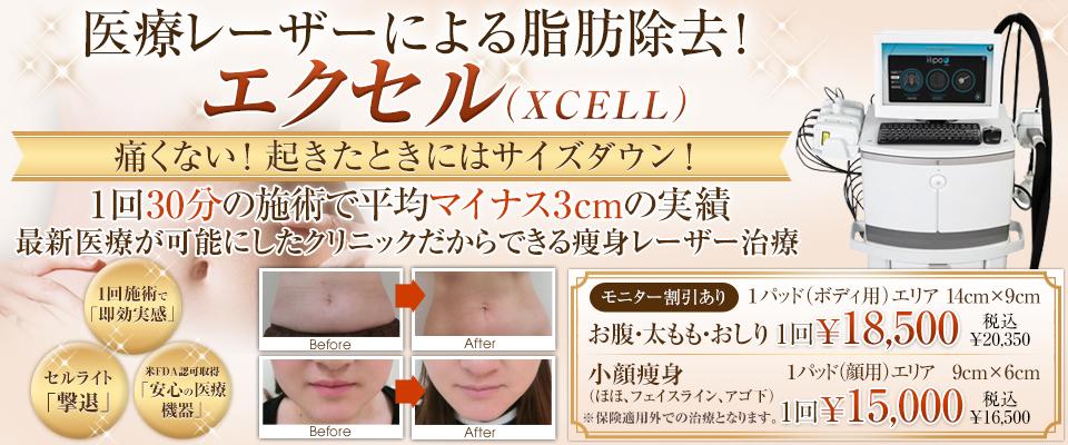 医療痩身Xcell